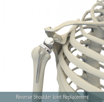 Reverse shoulder replacement2